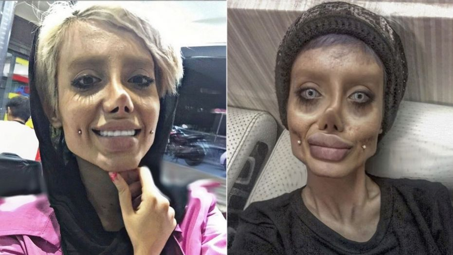 Iranian Girls Transformed Her Face With Plastic Surgeries